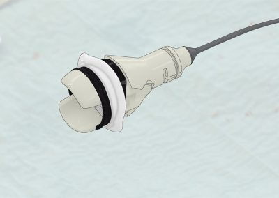 Illustration einer On-X Aortenklappenprothese